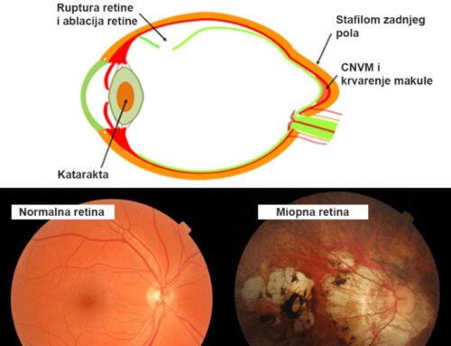 Kratkovidost nije samo korekcija vida putem nošenja naočara i kontaktnih sočiva